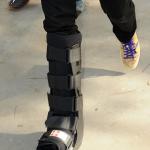 foot-cast-anthony-Kiedis-march-4-2012
