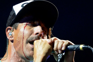 rhcp anthony kiedis bleeding eye forehead injury